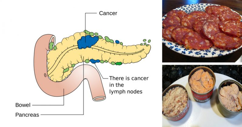 Image of 14 Cancer-Causing Foods You Should Never Put In Your Mouth Again