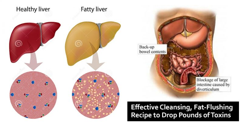 Image of 48-Hour Weekend Liver, Colon and Kidney Detox to Cleanse Toxins and Fat from the Body