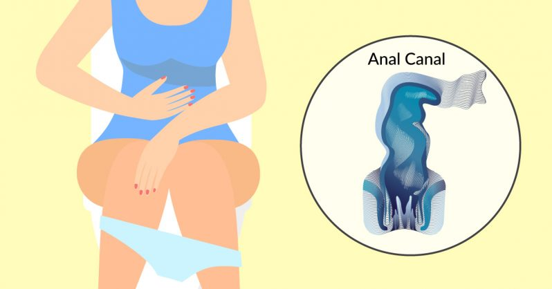 Image of 6 early warning signs of Anal Cancer everyone is TOO embarrassed to talk about