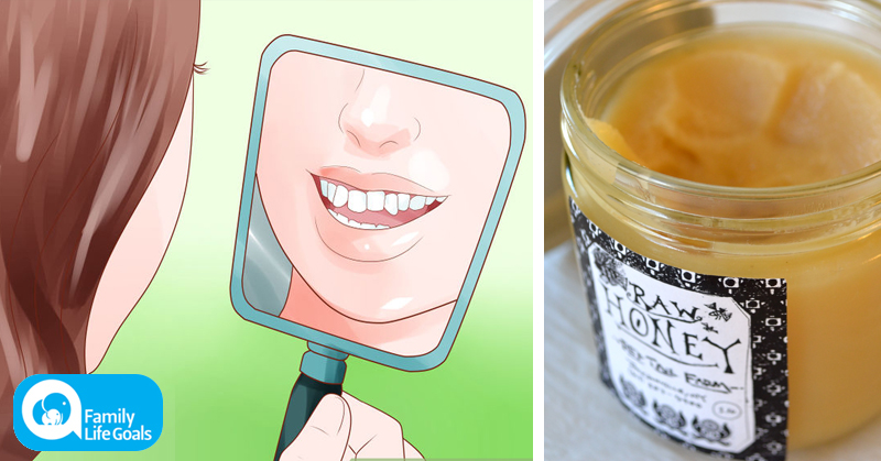 3 simple food swaps that can stop your teeth from going crooked
