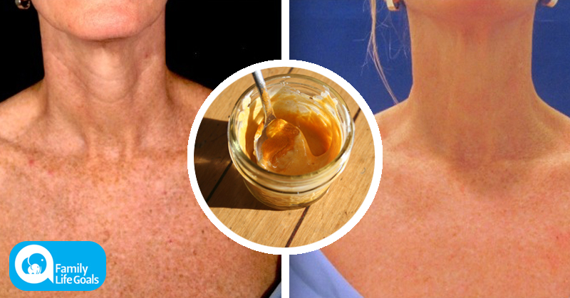 The Turmeric Honey And Lemon Face Mask That Can Erase Sunspots And