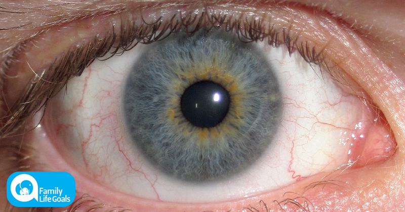 According to science, people with blue eyes actually have brown eyes