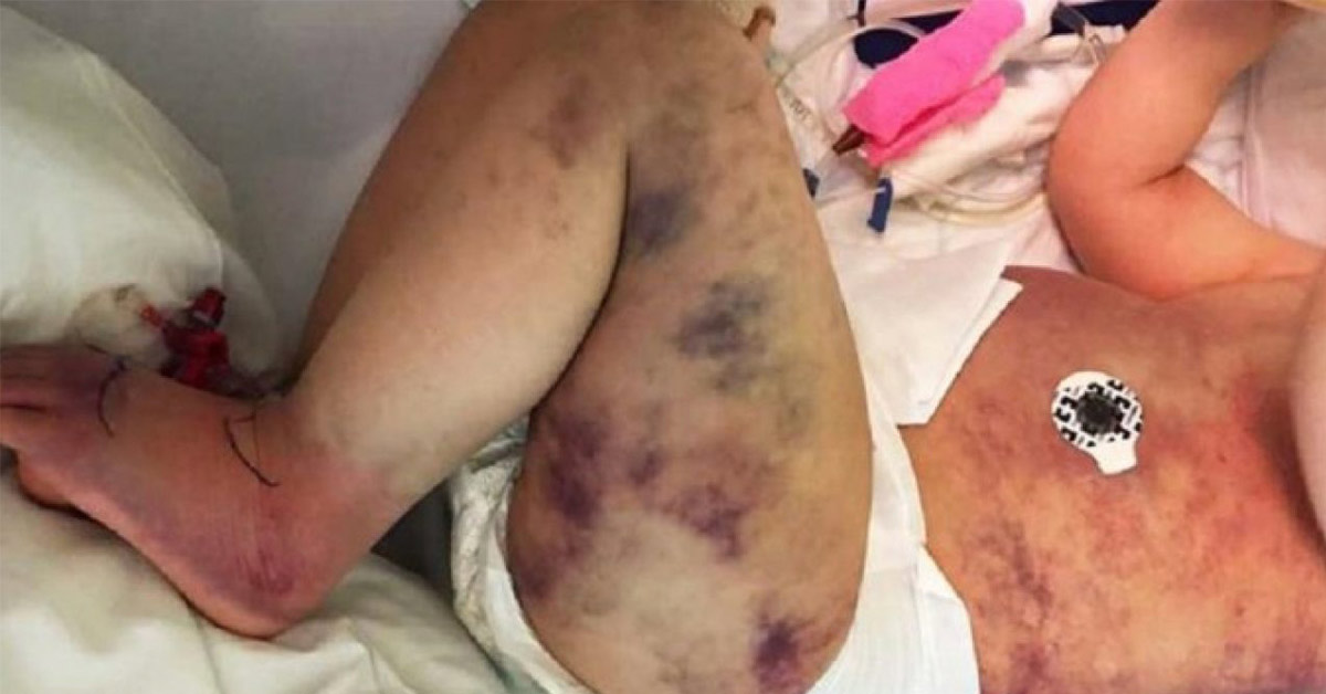 Mom Assumed Her Son Got Stung By A Wasp But She Realized It Was Something Worse After His Entire Body Turned Blue