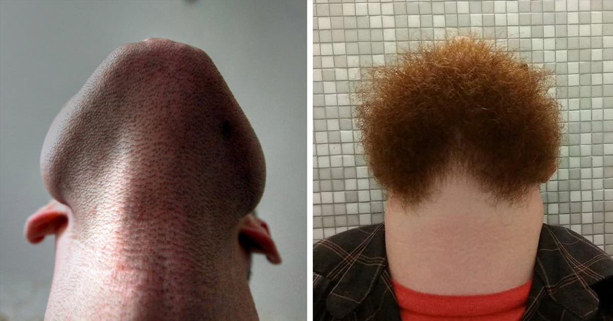 Hilarious Pictures of Bearded Men's Chin-Up Selfies That Went Viral