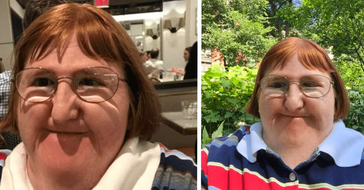 Woman Born with a Bone Disorder Fights Back with Selfies after Being Told She's 'Too Ugly'
